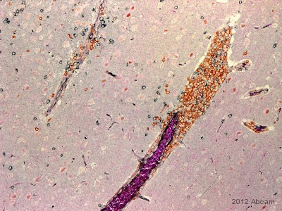 Immunohistochemistry (Formalin/PFA-fixed paraffin-embedded sections) -  [BC/1F6] (ab846)