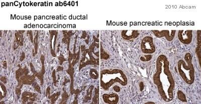 Immunohistochemistry (Formalin/PFA-fixed paraffin-embedded sections) - pan Cytokeratin antibody [PCK-26] (ab6401) image