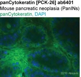 Immunohistochemistry (Frozen sections) - pan Cytokeratin antibody [PCK-26] (ab6401)